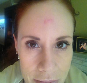 Post procedure on forehead, almost healed